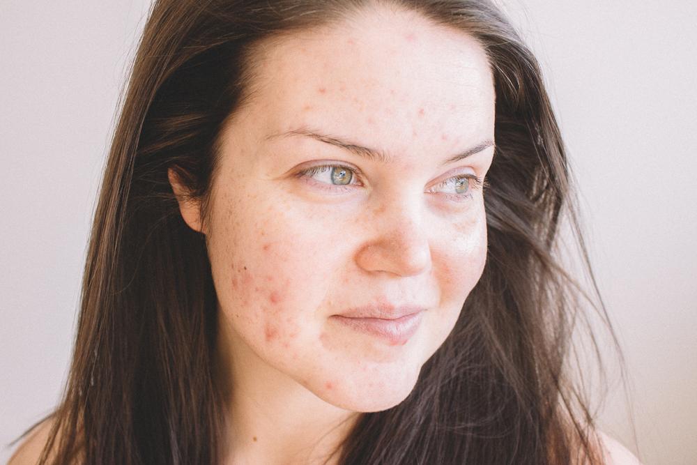 skin-8